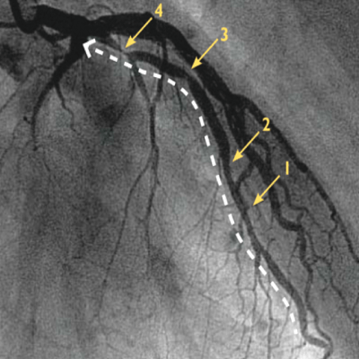 Can Pressure Wire Really Help Reduce Heart Attack Risk ...